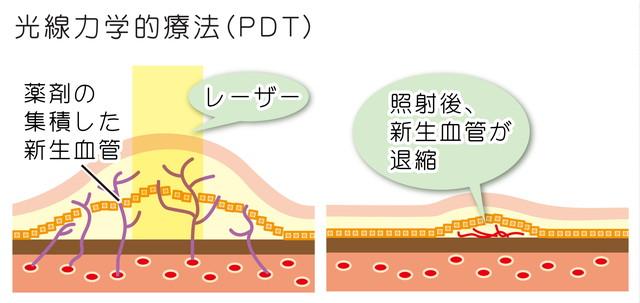 光線力学療法(PDT)